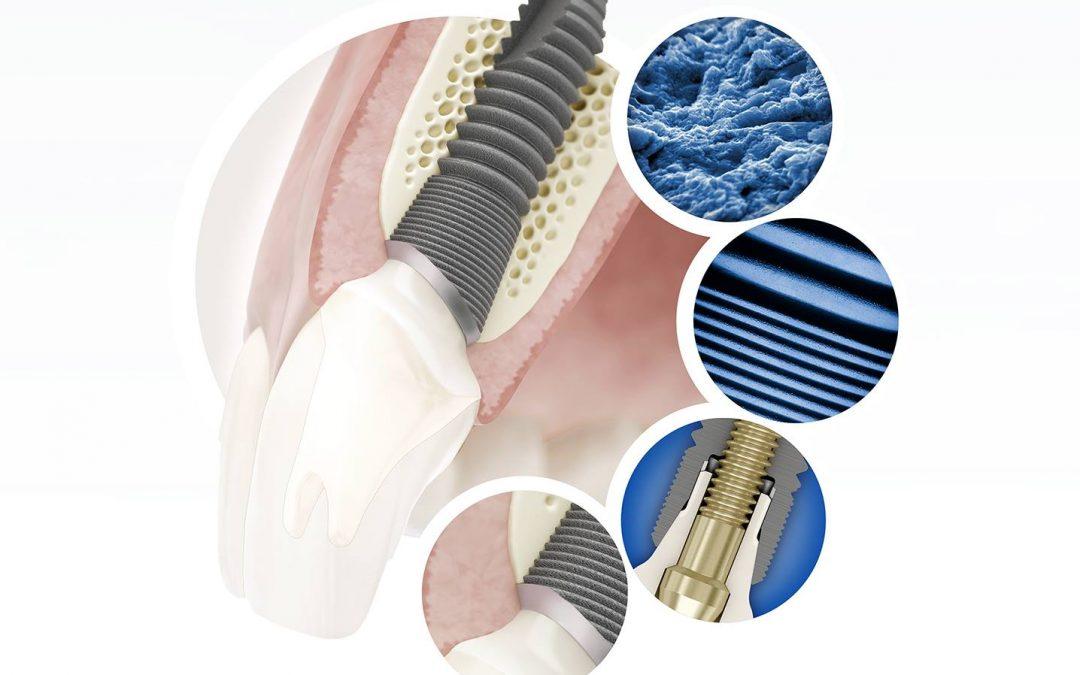 dantų implantas kaule