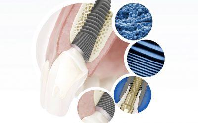 Dantų implantacija: žmonių baimės, ilgaamžiškumas ir garantijos