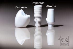 Dantų implanto visos sudedamosios dalys