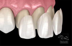 dantu laminatės cementuojamos ant minimaliai šlifuotų dantų